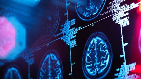 احتمال رفع خطرهای ژنتیکی آلزایمر با تغییرات شیوه زندگی در تحقیقات جدید