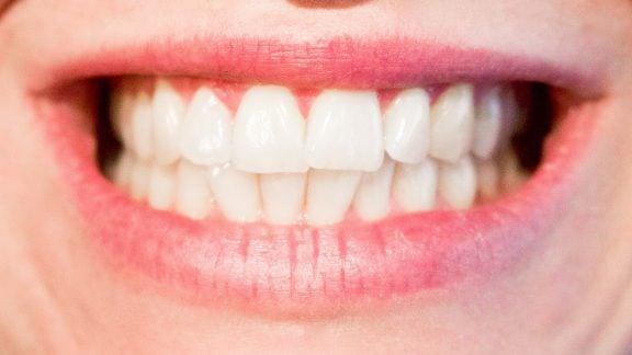عوامل خرابی دندانها