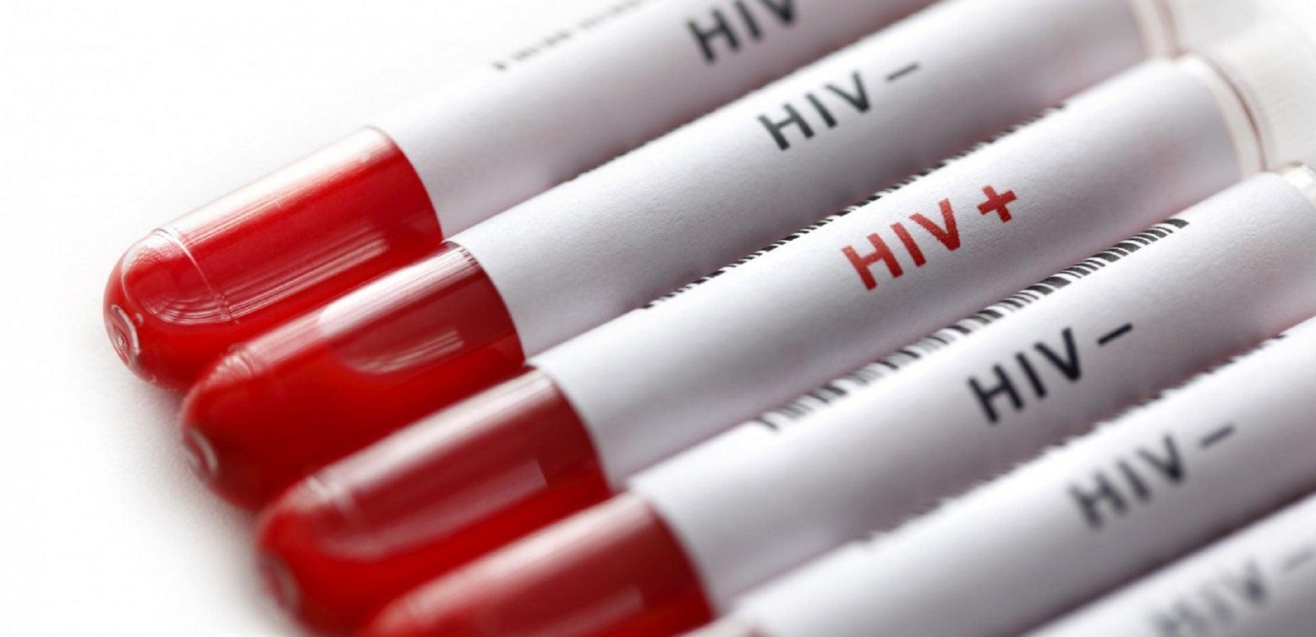 ویروس HIV از طریق سرنگ آلوده