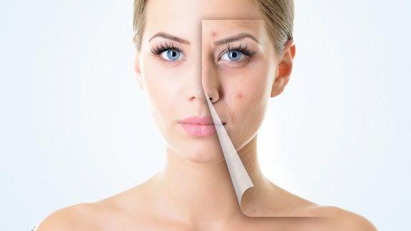 ۵ روش برای جلوگیری از لکهها و آکنههای پوست صورت : با آرایش نخوابید