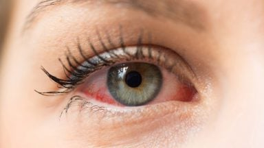 آبگرفتگی چشم